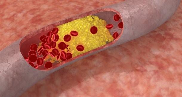 בריאות חניכיים טובה יכולה למנוע מחלות לב